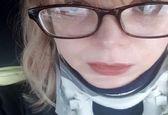 بیماری عجیب دختر ۲۷ ساله +عکس